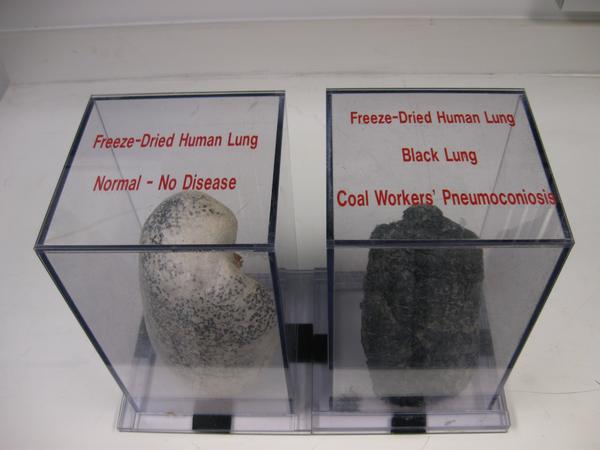 A comparison of a healthy lung and a lung ravaged by severe black lung disease on display at the National Institute for Occupational Safety and Health in Morgantown, W. Va.