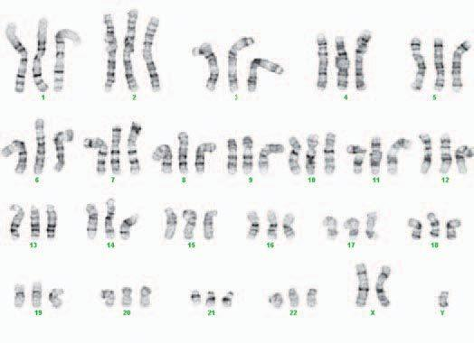 <p>This image shows the chromosomes from one of the cloned cells. Notice there are three sets of each chromosome; normal cells have just two copies of each chromosome.</p>