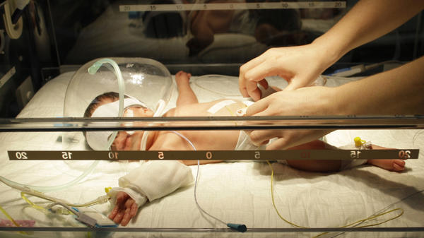 The most common cause of brain injury in premature infants is a lack of oxygen in the days and weeks after birth, researchers say.