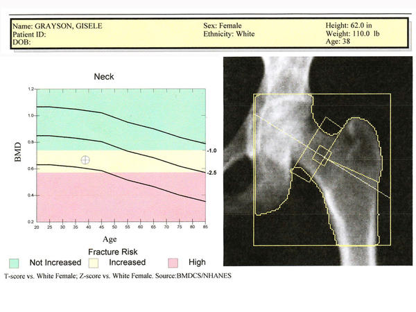"NPR journalist Gisele Grayson got her hip bone scanned a couple of years ago and <a href=""http://www.npr.org/blogs/health/2009/12/my_bone_scans_story.html"">discovered</a> she has osteopenia."