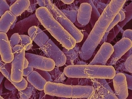 <em>Bacteroides</em> species are some of the most common bacteria in the human gut.