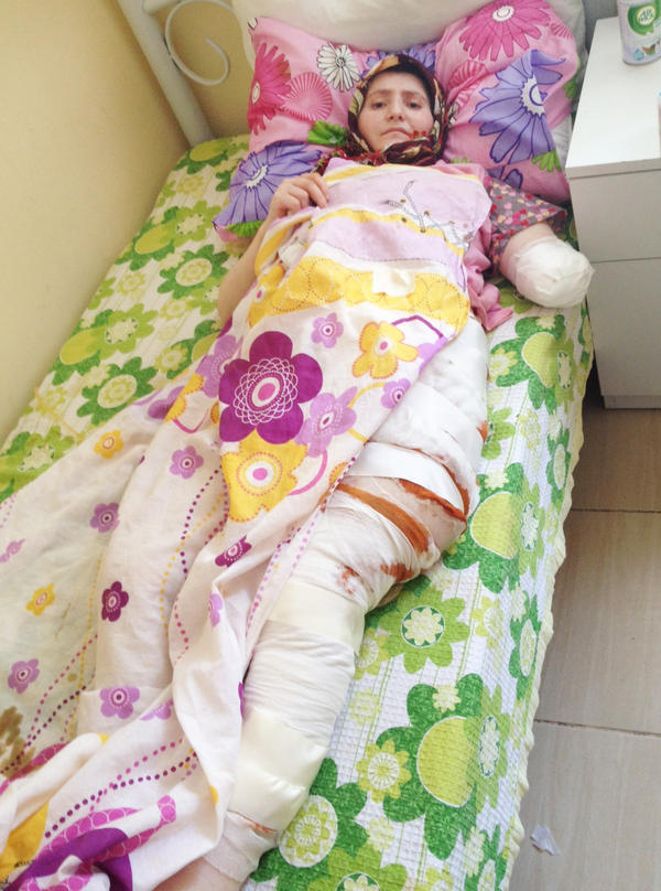 This 24-year-old Syrian woman from Homs was evacuated through the sewer system — which resulted in badly infected wounds — to a rehabilitation center in southern Turkey. She has had several surgeries to her abdomen and leg; her left arm was amputated.