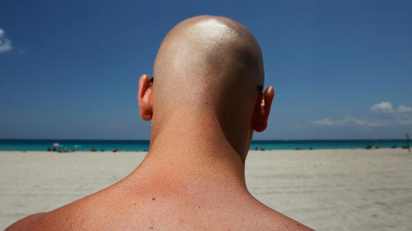 Stefano Amabili walks under the sun in Miami Beach, Florida, in May. The Center for Disease Control and Prevention has found that more people are using sunscreen and protecting themselves from the sun's rays.
