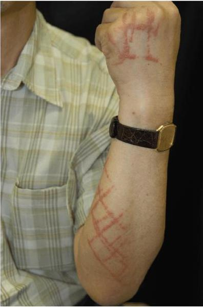 Urushiol, the chemical in poison ivy, is also harvested from the Japanese lacquer tree to coat lacquerware. Here, a rash caused by lacquerware that likely was not properly cured.