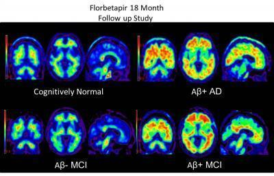 Brain scans using Amyvid dye to highlight beta-amyloid plaques in the brain. Clockwise from top left: a cognitively normal subject; an amyloid-positive patient with Alzheimer's disease; a patient with mild cognitive impairment who progressed to dementia during a study; and a patient with mild cognitive impairment.