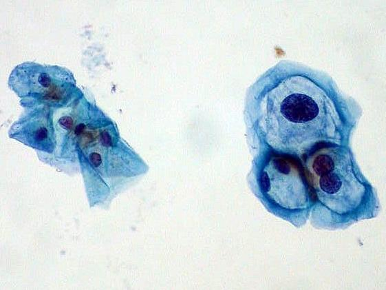 Cells gathered during a Pap test. Those on the left are normal, and those on the right are infected with human papillomavirus.