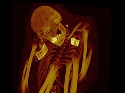 The CT scans of a Peruvian mummy from about 200-900 B.C. showed calcification in the aorta and iliac arteries.