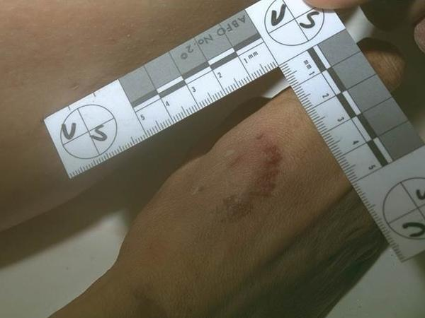 A jury convicted Richards after a photo of what was thought to be a bite mark on the victim's hand was submitted as evidence at trial.