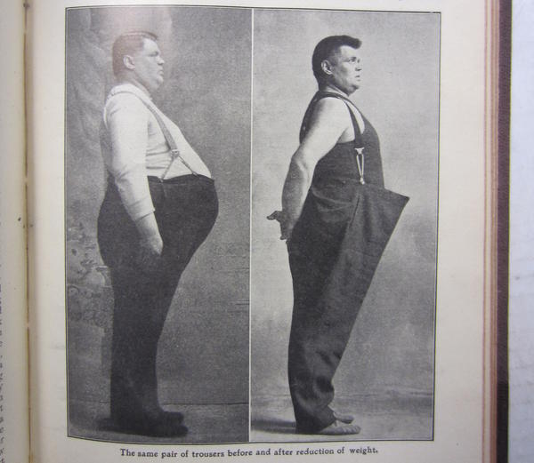 """The same pair of trousers before and after reduction of weight"" from a Bernarr Macfadden publication in 1909."