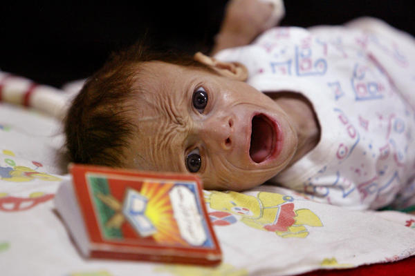 Ali Mohammed, a 3-month-old Iraqi boy, cries during his diarrhea treatment in the General Teaching Hospital for Children in Baghdad in 2004. A small copy of the Quran lies on his pillow.