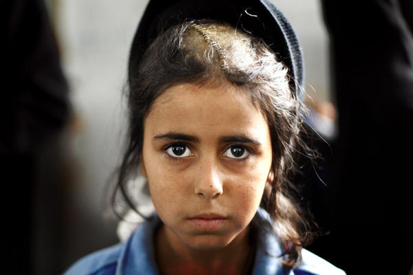 Ansam Rahel, 10, displays a head injury she sustained when Israeli troops shelled a U.N. school where she and her family had sought refuge from Gaza fighting in Beit Lahiya, northern Gaza Strip, in January 2009.