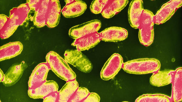 False-color transmission electron micrograph of a field of whooping cough bacteria, <em>Bordetella pertussis</em>.