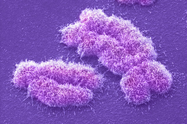 "The human Y chromosome (left) holds the code for ""maleness""; that's the X on the right."