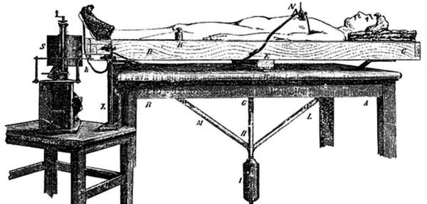 """Angelo Mosso's """"human circulation balance"""" machine worked like a seesaw to measure blood flow changes to the brain."""