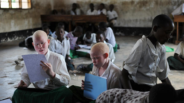 Children with albinism, a genetic condition that can cause vision problems, study at a school for the blind in Tanzania. Because albinos are often attacked, the school is a rare sanctuary.