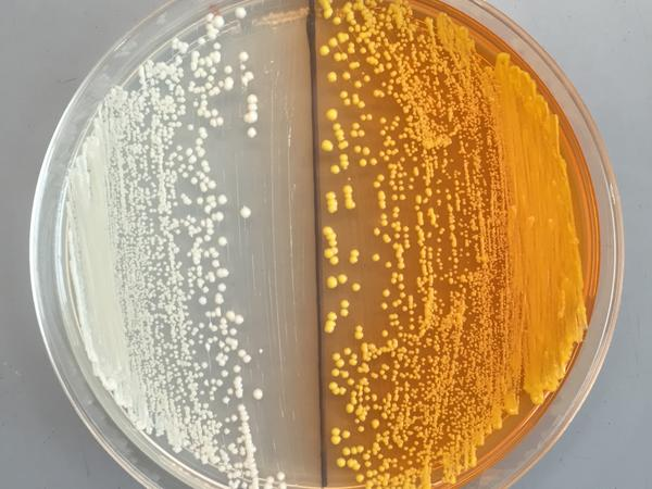Scientists inserted an orange pigment into yeasts (right) to help find the missing enzyme needed to complete the synthesis of morphine in the microorganism.