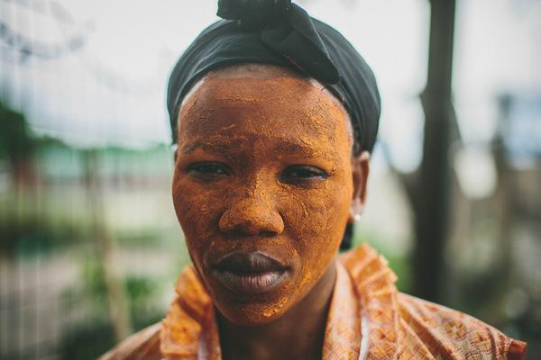 A corn cooker takes a break from her work in the Warwick Junction area of Durban, South Africa. She wears a lime paste on her face, which is traditionally the mark of a healer but doubles as sunscreen.