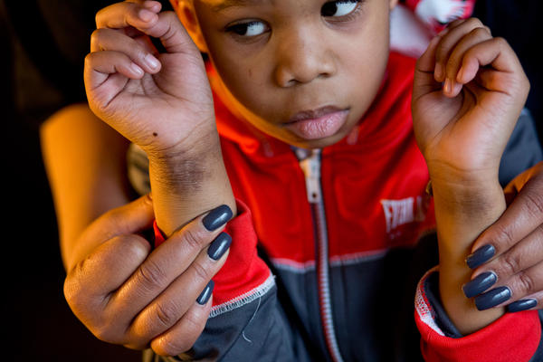 McDonald holds 6-year-old Justice's wrists to show the eczema he developed three years ago. It's unclear whether the water caused the eczema, but his mother says it does aggravate the condition, because the rash never calms down or goes away fully.