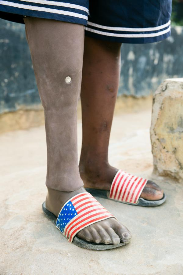 Sundaygar's prosthetic right leg looks so realistic that some kids at the orphanage think it's real.