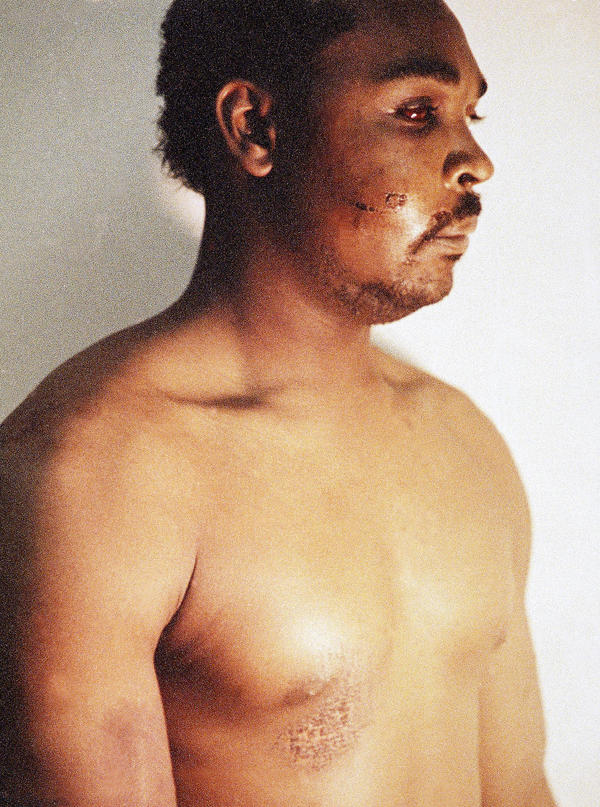 This photo of Rodney King was taken on March 6, 1991, three days after police officers beat him savagely. The photo is one of three introduced into evidence by the prosecution in the trial of four LAPD officers in a Simi Valley, Calif., courtroom in 1992.