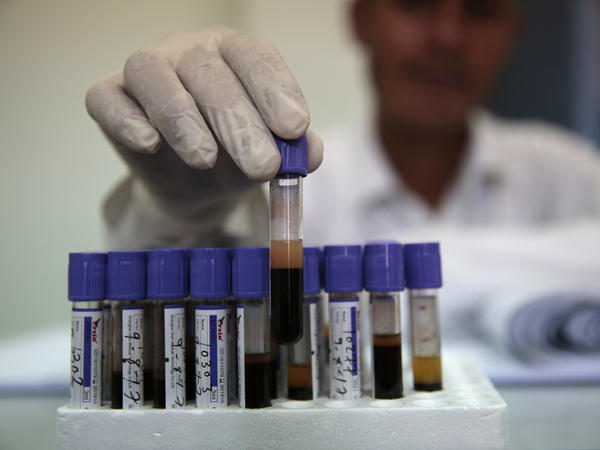 A medical worker sorts blood test samples at the National Blood Transfusion and Research Centre in Sanaa on Wednesday.