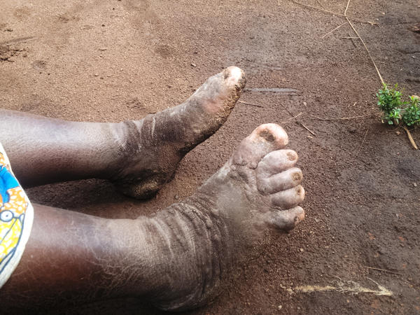 The typical asymmetrical lymphedema (lower limb swelling) seen in podoconiosis. The skin on the affected limbs is thickened with warty and mossy nodules. The toes are disfigured with joint fixation typical of advanced podoconiosis disease.