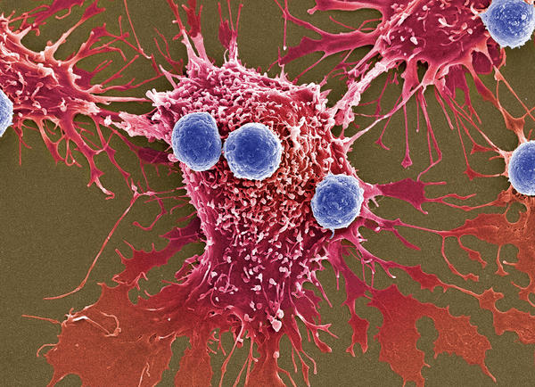 Scientists have created a treatment in which genetically modified T cells, shown in blue, can attack cancer cells, shown in red.