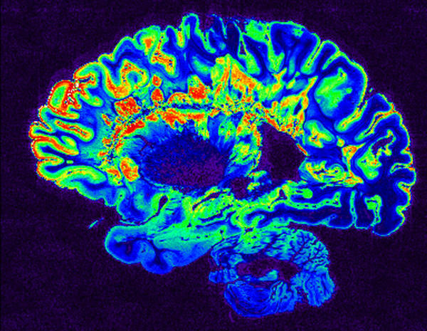 An MRI scan of a brain from a person with multiple sclerosis. (National Institutes of Health/Flickr)