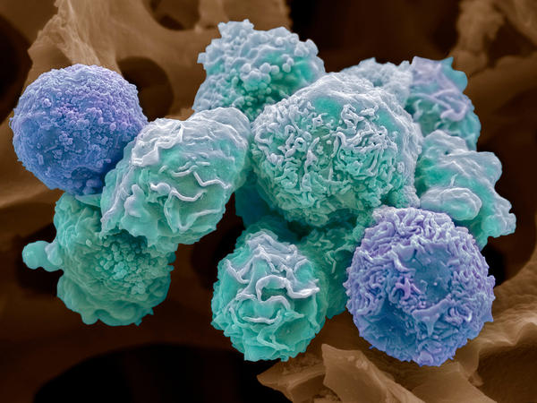 Colored scanning electron micrograph (SEM) of cultured cancer cells from a human cervix, showing numerous blebs (lumps) and microvilli (hair-like structures) characteristic of cancer cells. Cancer of the cervix (the neck of the uterus) is one of the most common cancers affecting women. Magnification: x3000 when printed 10 centimetres wide.