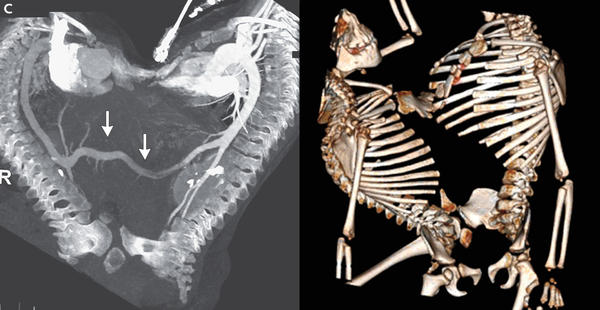 The CT scan (left) shows the twins before the surgical separation. At right; a three-dimensional reconstruction of the CT scan was used to help doctors prepare for the procedure.