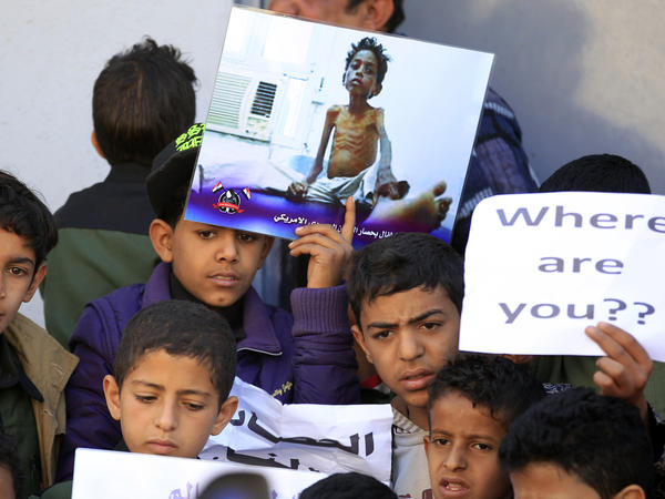Yemeni children demonstrate on the occasion of the UN's Universal Children's Day on November 20, 2017 in front of the UN offices in the capital Sanaa.