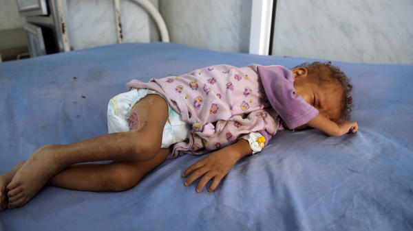 A malnourished Yemeni child receives treatment at a hospital in the port city of Hodeidah on Tuesday. Ravaged by cholera, famine and war, the country has been declared the world's worst humanitarian crisis — and there is little indication the dire situation there is improving.