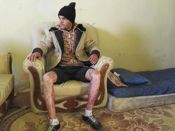Touti Ferid, 38, shows his burn scars in his home.