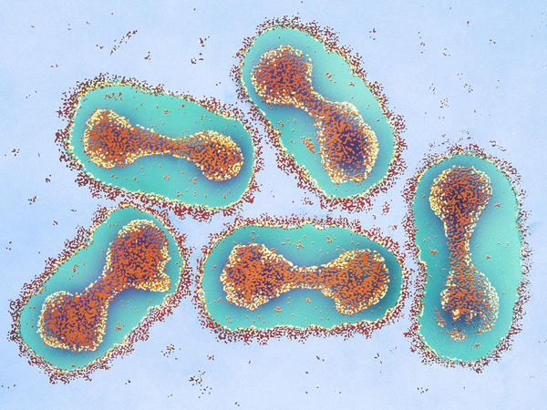 Smallpox virus, colorized and magnified in this micrograph 42,000 times, is the real concern for biologists working on a cousin virus — horsepox. They're hoping to develop a better vaccine against smallpox, should that human scourge ever be used as a bioweapon.