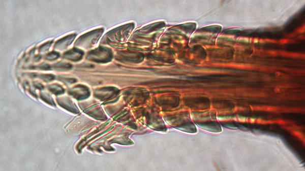 A tick's mouth is covered in hooks that help it dig into the skin and stay attached for several days. This young tick's mouth was photographed under the microscope at San Francisco State University.<strong></strong>
