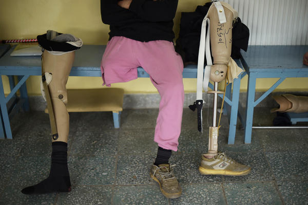 An Afghan amputee sits at a Kabul hospital for war victims and the disabled run by the International Committee of the Red Cross, on April 3, 2016.