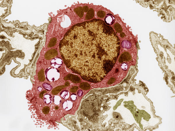 An image from an electron microscope shows a type II alveolar cell, found in the air sacs of lungs. In the cell's cytoplasm (pink) are lamellar bodies (purple), which contain surfactant.