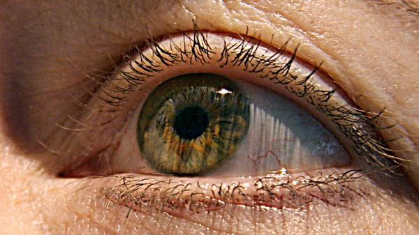 A group of people with connections to two cities in North Carolina and Alabama have been diagnosed with a rare eye cancer called ocular melanoma. Medical experts are trying to determine the cause of the cases.