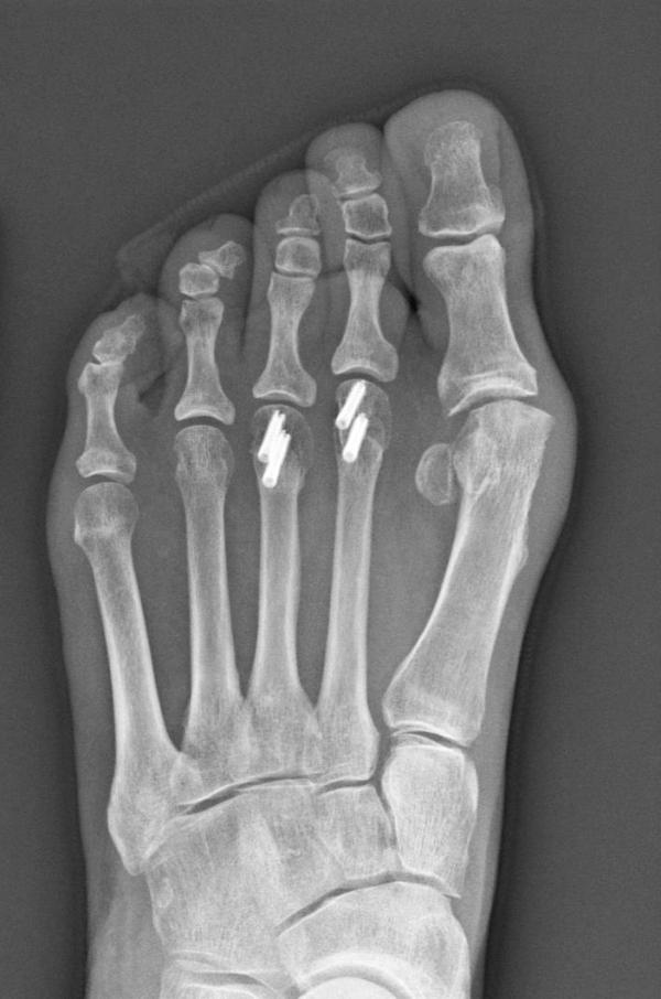 An X-ray of Young's foot shows the four implanted screws — each of which cost more than a high-end computer.