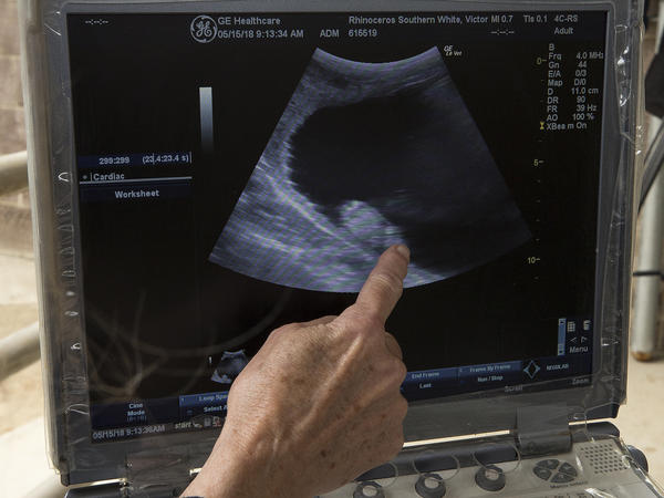 An ultrasound of Victoria shows a 2-month-old embryo.