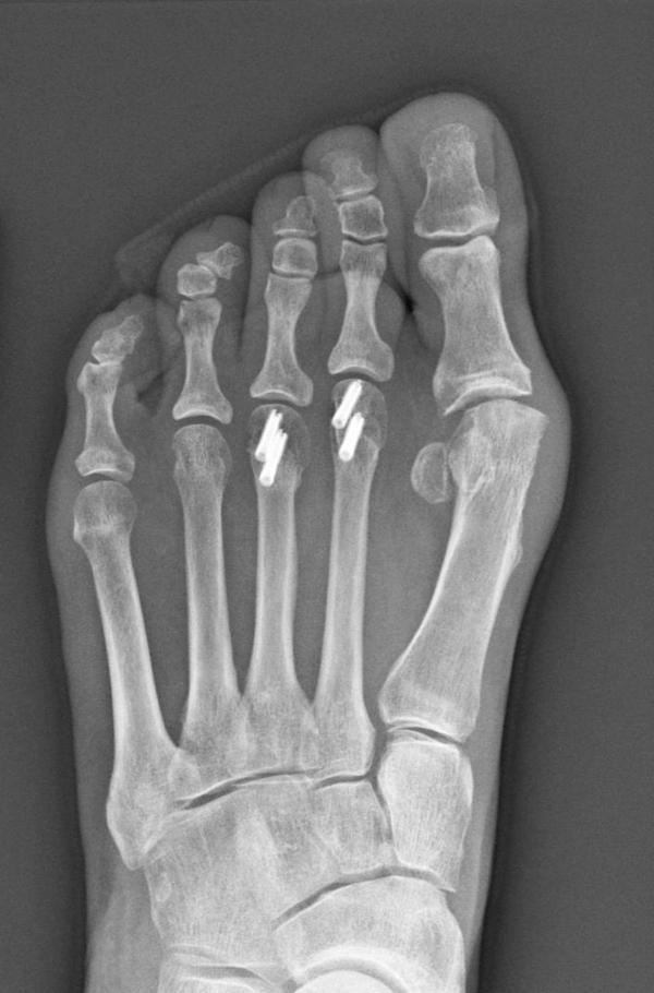 An X-ray of Sherry Young's foot shows the four implanted screws — each of which cost more than a high-end computer.