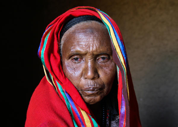 Amina Ahmed at home in Oromo, Ethiopia. Before having cataracts removed from both her eyes, she had been blind for four years.