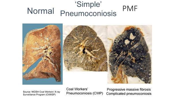 A slide from a presentation by the National Institute for Occupational Safety and Health shows the progression from a healthy lung to advanced black lung disease.
