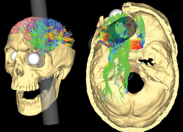 Two renderings of Gage's skull show the likely path of the iron rod and the nerve fibers that were probably damaged as it passed through.