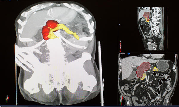 Zinreich digitally paints the pancreas (yellow) and a tumor (red) in a CT scan.