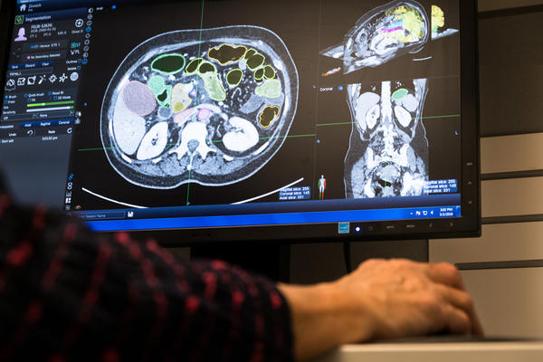 Eva Zinreich, a medical researcher, digitally paints a CT scan to help train the computer program. The process can take almost four hours for a single scan.