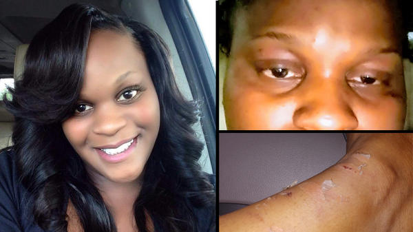 Oakleaf resident Kirenda Welch was allegedly punched while shackled by a JSO corrections officer who was arrested Thursday.