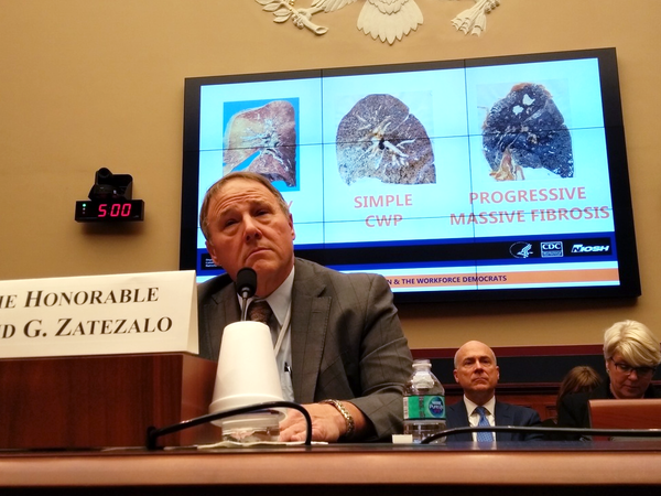 David Zatezalo, the Assistant Secretary of Labor for Mine Safety and Health, was asked about the advanced black lung epidemic at a congressional hearing in Washington, D.C., on Feb. 6, 2018.