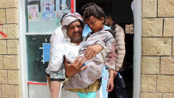 A man carries a wounded child to the hospital Thursday after the Saudi-led coalition carried out an airstrike on a crowded area in Houthi-controlled Saada province. At least 29 children under the age of 15 were killed in the attack, according to the International Committee of the Red Cross.