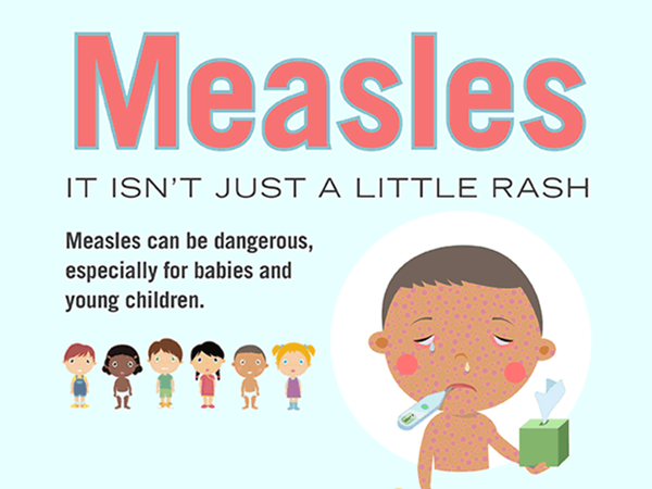 Pinellas County health officials are encouraging people to receive vaccinations to protect against the spread of measles